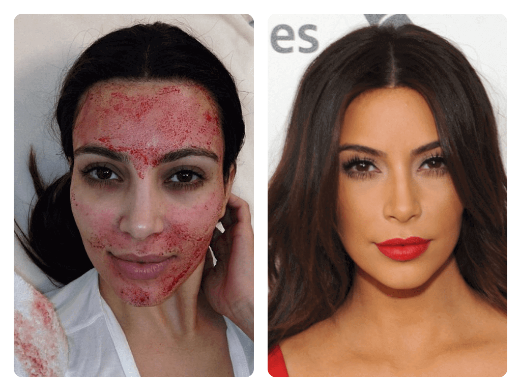 trajtimi me plazmen e gjakut, trajtim fytyre, kim kardashian