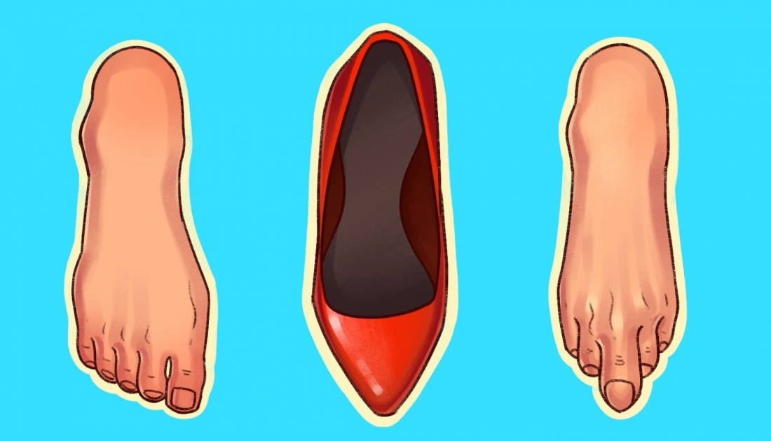 kepuce demtojne kembet