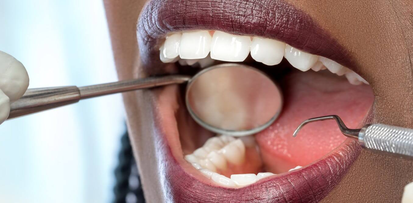 kujdesi oral, dhembet gjate shtatzenise, problemet e dhembeve
