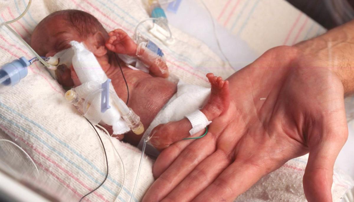 foshnja oremature, mbijeton foshnja, femija me i vogel ne bote